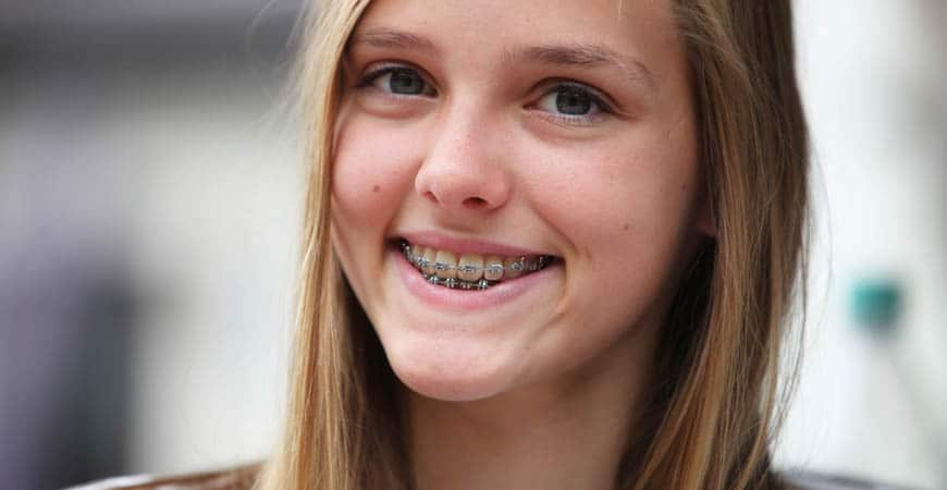 Time for Braces in Vancouver WA?