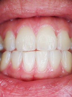 Adult Braces: Are You Considering Straighter Teeth?