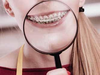 Braces vs. Invisalign: What Should I Get?